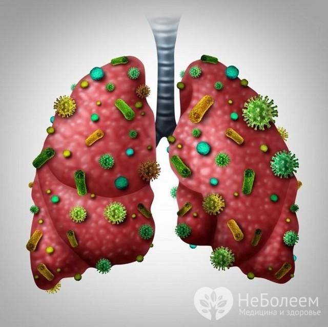 Очаговая пневмония или бронхопневмония: симптомы и лечение
