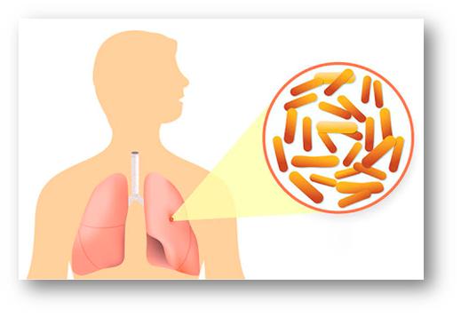 Реакция Манту на туберкулез: как выглядит при туберкулезе и у переболевшего туберкулезом