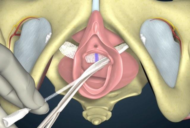 Недержание мочи при кашле: причины, диагностика и лечение