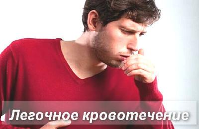 Легочное кровотечение: причины и неотложная помощь при выделении крови из легких