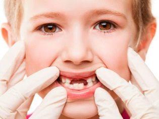 Тантум верде от кашля для детей: противопоказания